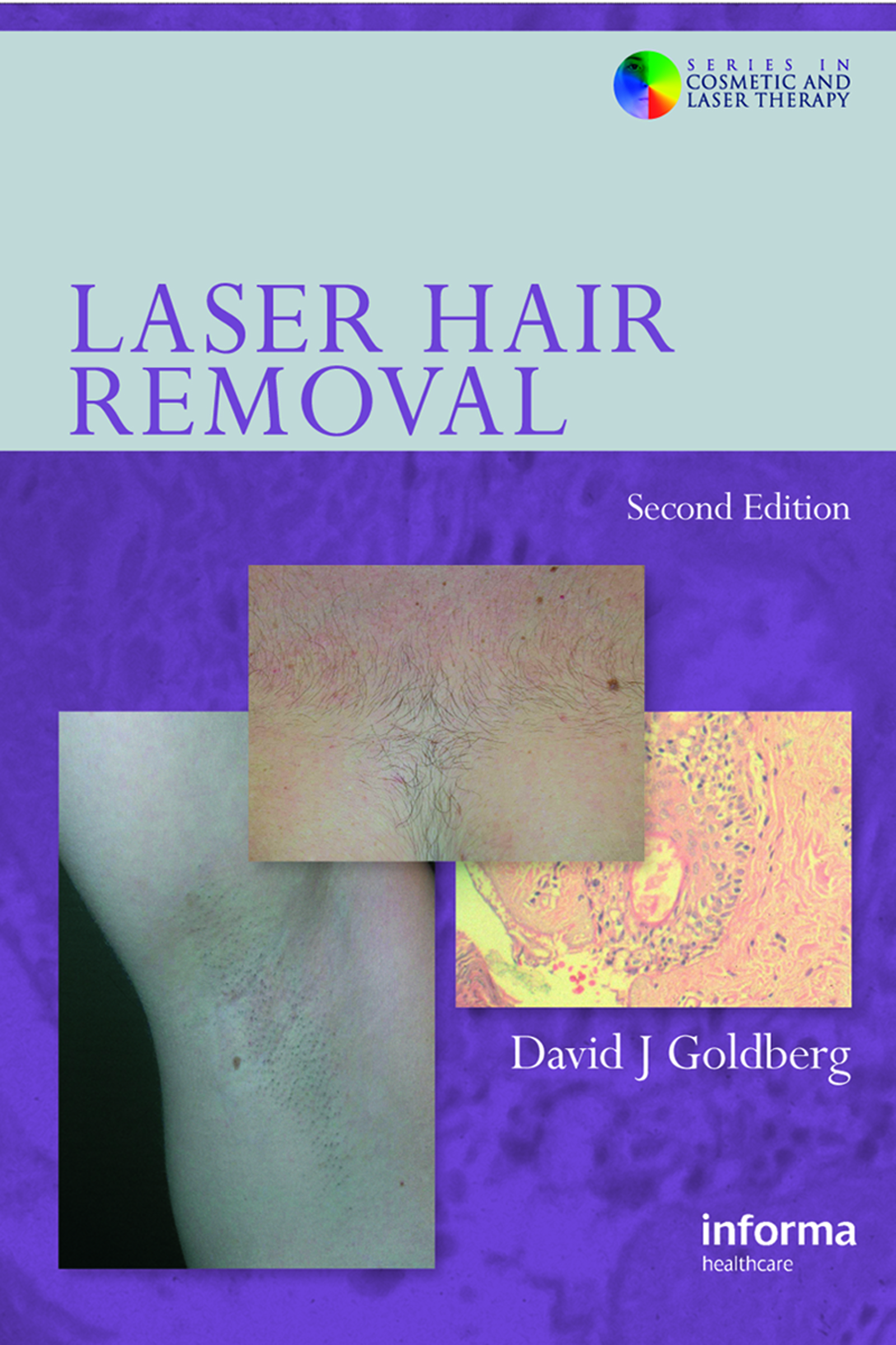 Laser Hair Removal, Second Edition