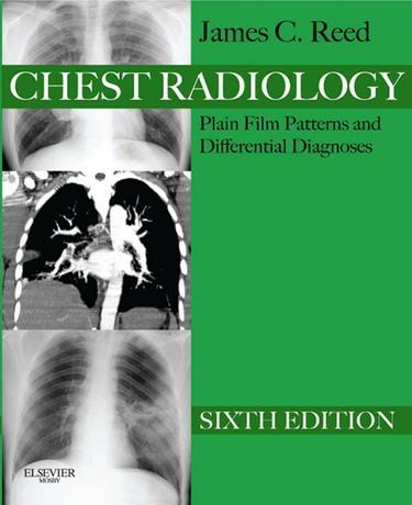 Chest Radiology Plain Film Patterns and Differential Diagnoses E-Book