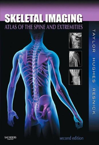 Skeletal Imaging - E-Book